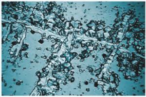 Kalkstruktur - ohne Aquavital
